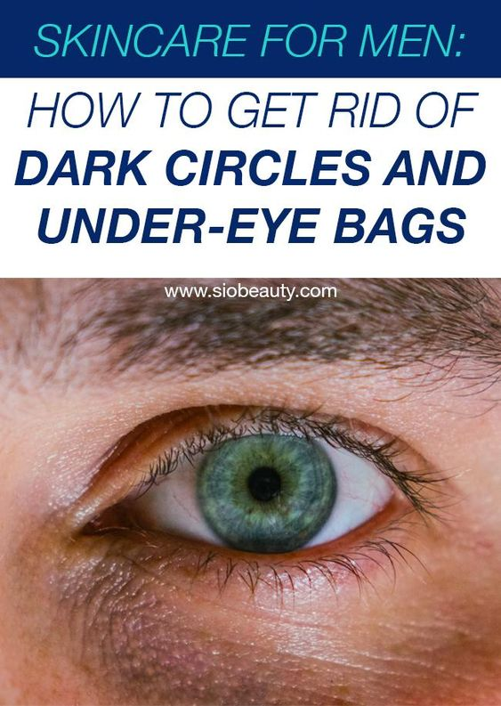 For Men: How To Get Rid Of Dark Circles And Under-Eye Bags