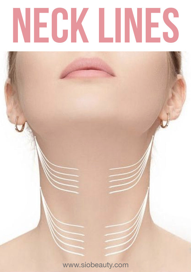 How to Get Rid of Neck Lines
