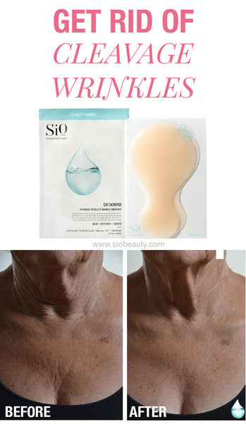 Treat & Prevent Cleavage Wrinkles Don't let cleavage wrinkles get you down. The experts at SiO Beauty share 11 tips for treating and preventing cleavage wrinkles and fine lines. DECOLLETE SKINCARE #siobeauty #beautytips #skincare  #skincareproducts