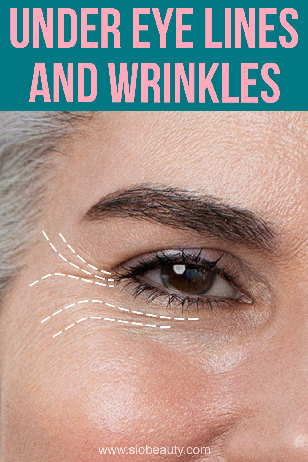 under eye lines and wrinkles