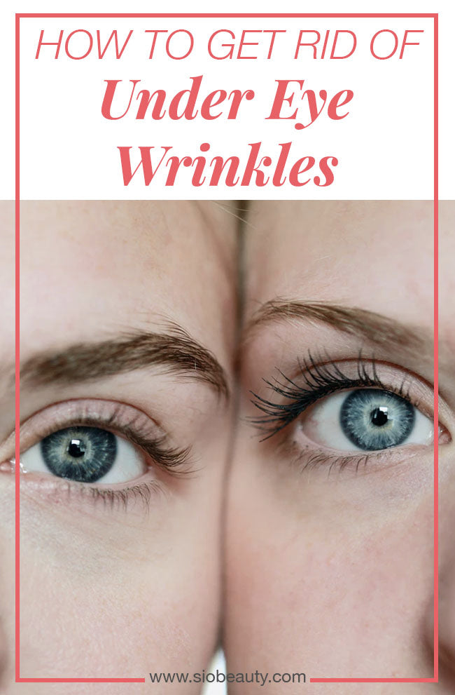 THE BEST HOME REMEDIES FOR UNDER-EYE WRINKLES Getting rid of your under-eye wrinkles is a winning formula towards looking younger. We've collected the five best home remedies for under-eye wrinkles so you can sit back, relax, and let the all-natural ingredients work their magic. #siobeauty #beautytips #skincare #skincareproducts #antiagingtips #diyskincare