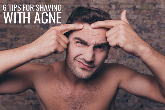 how-to-shave-with-acne