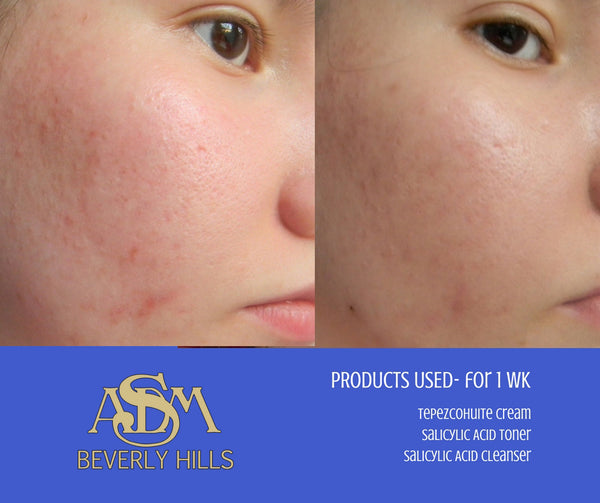 ASDM Beverly Hills Before and After Pictures