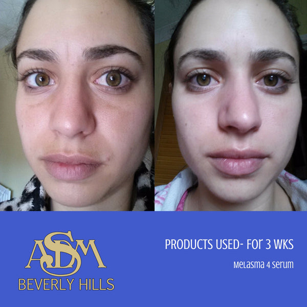 ASDM Beverly Hills Before and After