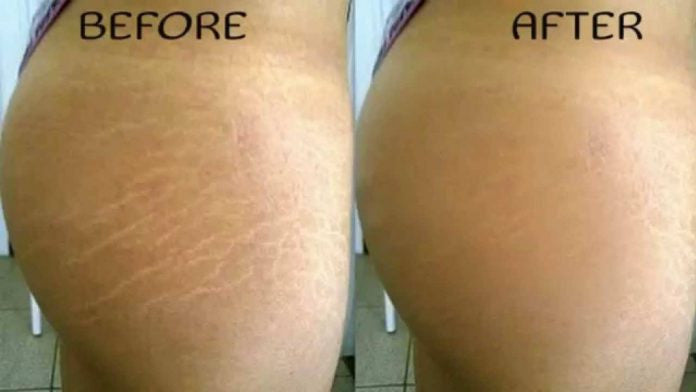 How To Get Rid of Stretch Marks By Using Essential Oils
