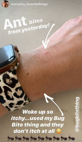 Bug Bite Thing review via @everyday_favoritethings