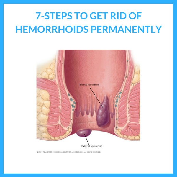 How to Get Rid of Hemorrhoids Permanently - 7 Quick and Easy Steps