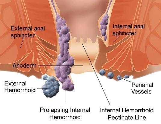 5 Quick Tips That Every Internal Or External Hemorrhoid Sufferer Needs To Know