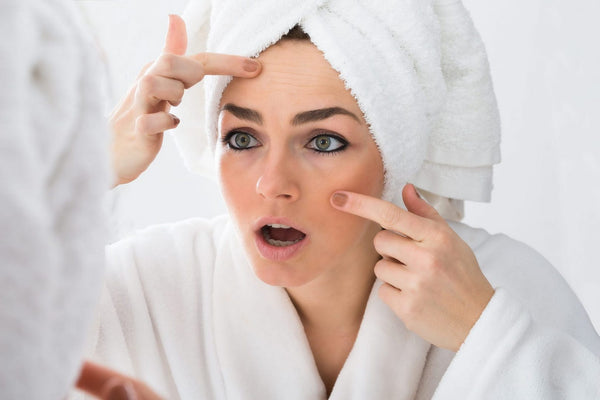 Acne Scars 101 - A Guide to Acne Scarring and Acne Scars Treatment