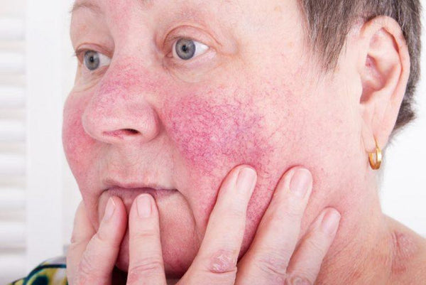 Best Essential Oils for Rosacea - Which Essential Oils Are the Best for Rosacea?