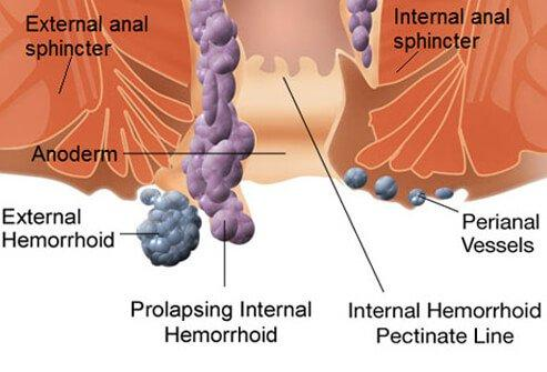 Hemeroid Guide: Treatment, Symptoms and Relief For Internal and External Hemeroids