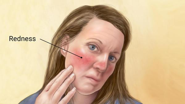 How To Stop Rosacea From Itching | What Causes Rosacea to Itch?