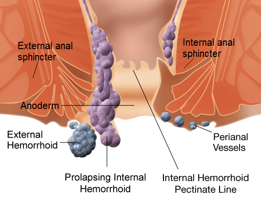 Best Internal Hemorrhoids Treatment Tips & Advice - Internal Hemorrhoid Help!