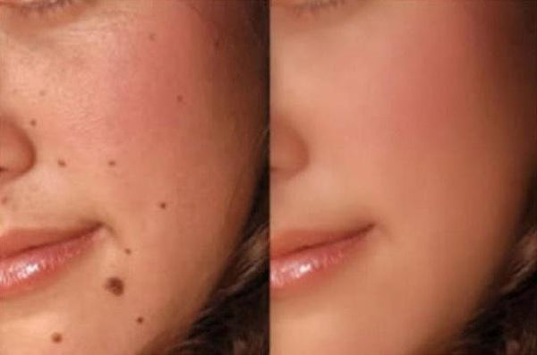 Mole Removal Scar Guide: The Most Effective Methods of Treatment