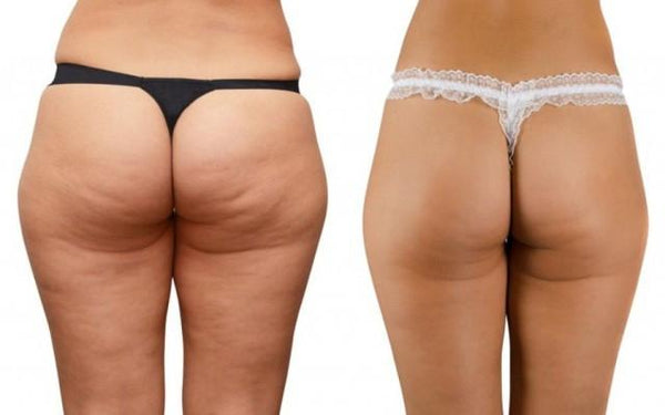 The Myths and Facts About Cellulite