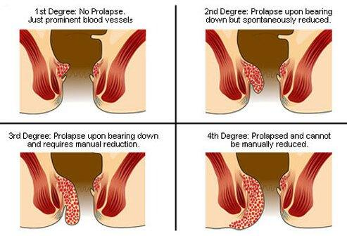 Prolapsed Hemorrhoids Guide - How To Treat Prolapsed Internal Hemorrhoids