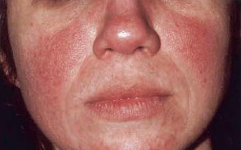 Rosacea 101: The Anatomy of Rosacea