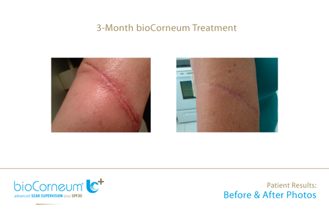 BioCorneum before and after photo