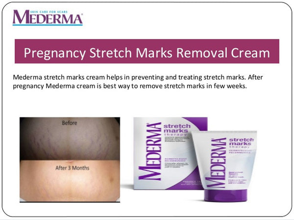 mederma stretch mark cream before and after photos