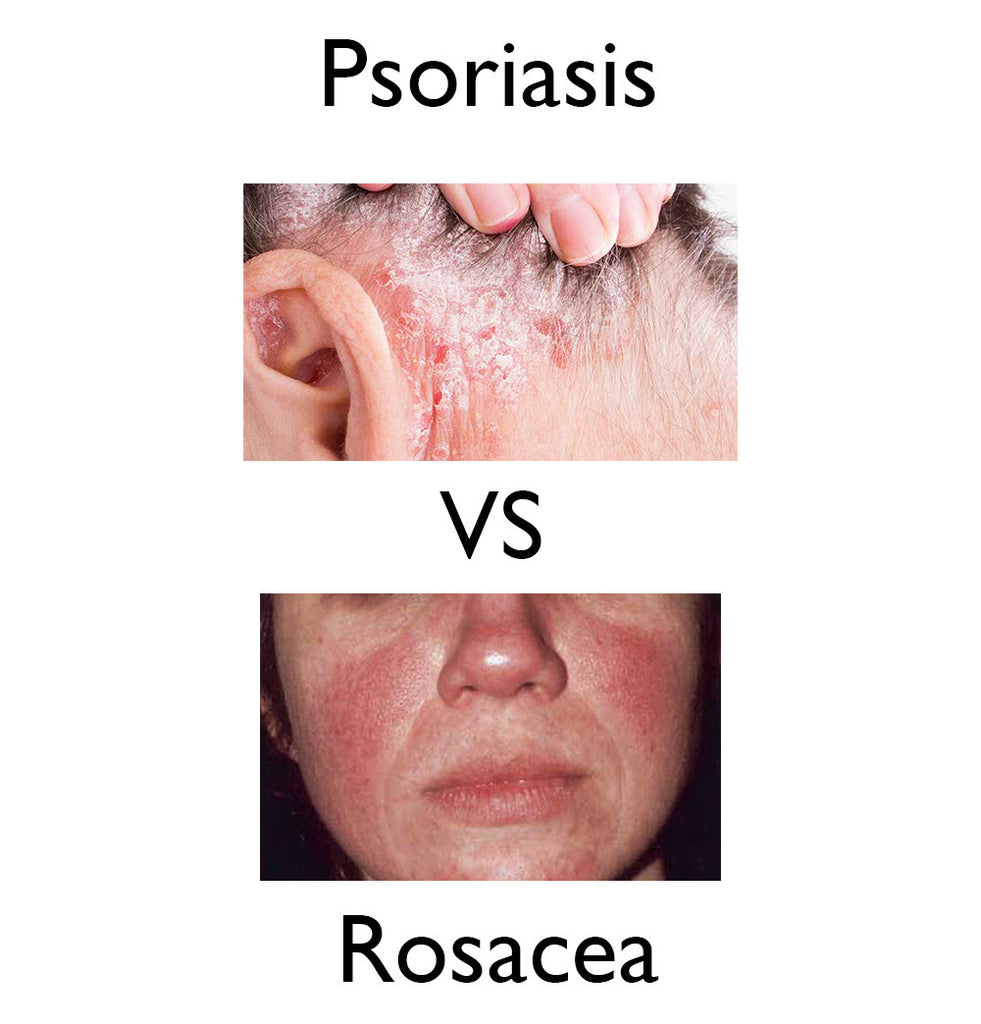 Psoriasis vs rosacea symptoms causes and treatments