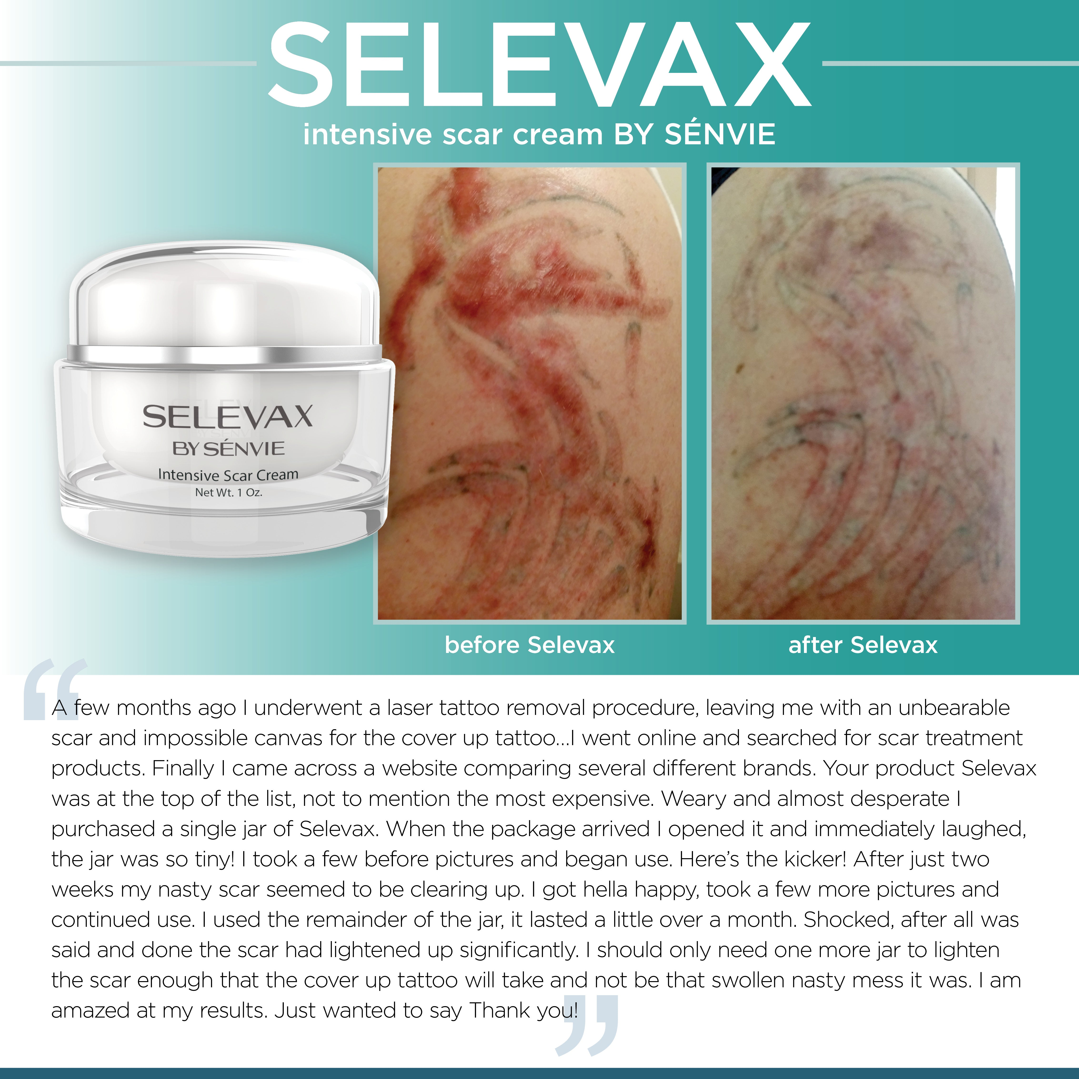SELEVAX before and after photo - Joel