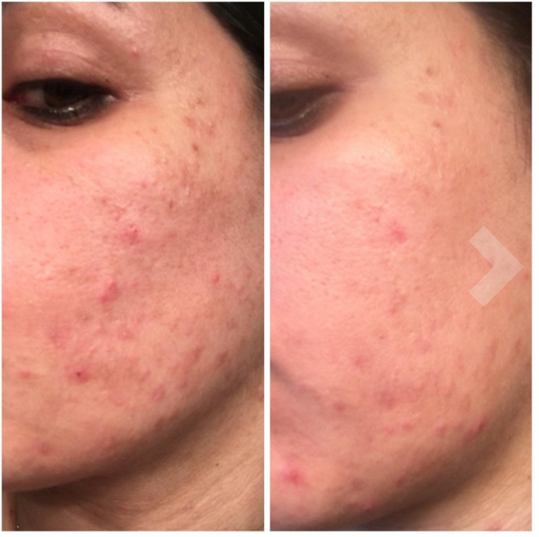 Uptown cosmeceutical before and after photos