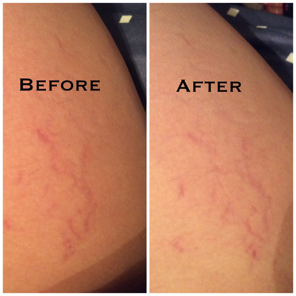 cerave before and after photo 1