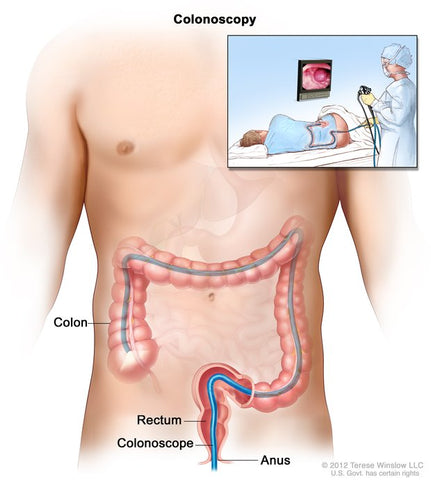 colonoscopy cause hemorrhoids