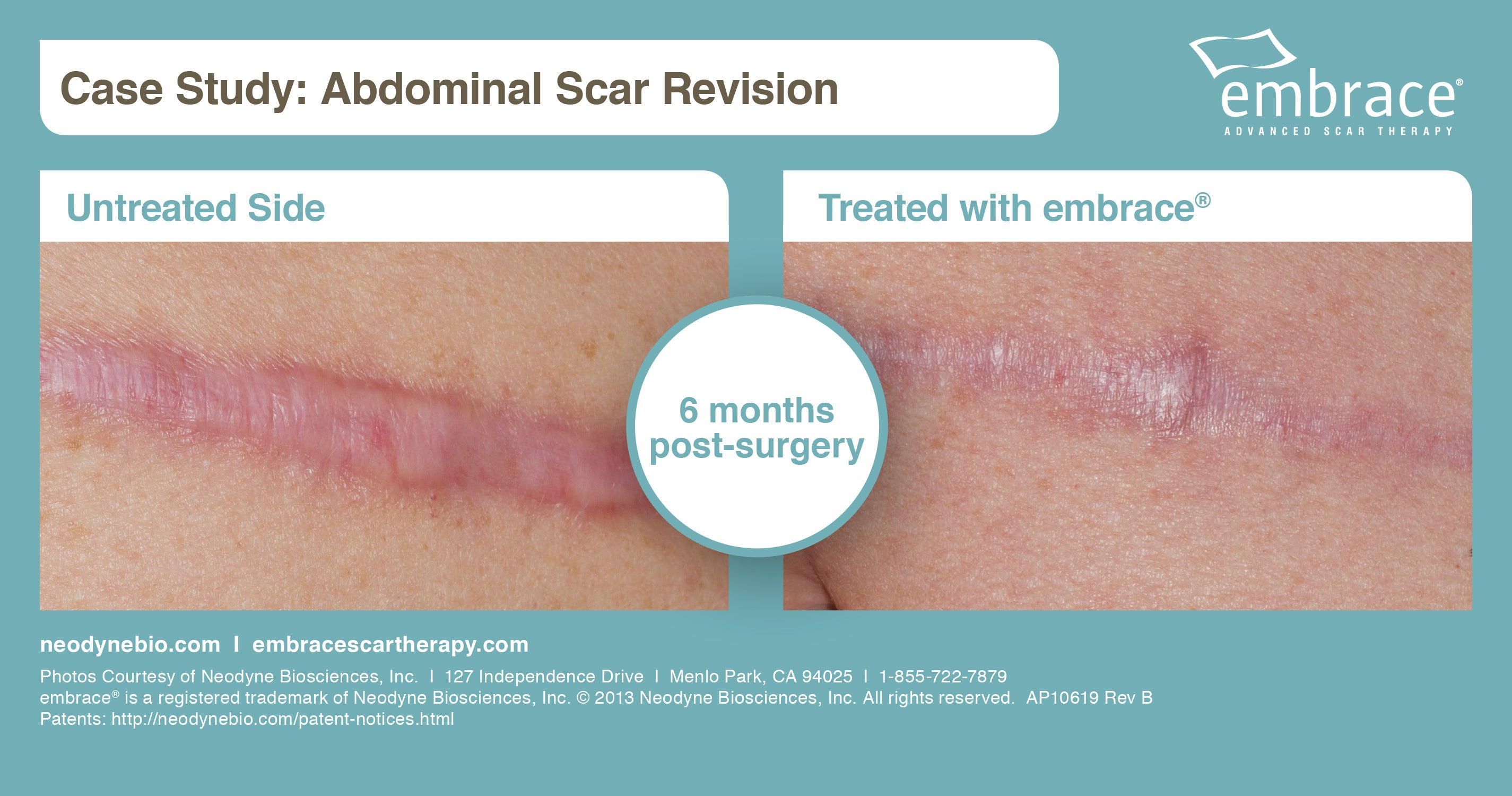 embrace minimize scar before and after photos