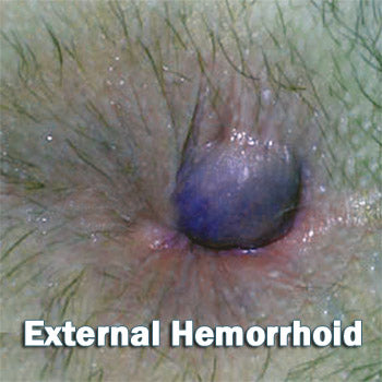external-hemorrhoids photos