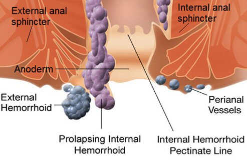 external hemorrhoids treatment diagram