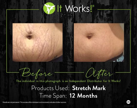 it works stretch mark cream before and after pics