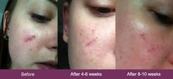 mederma before and after photos