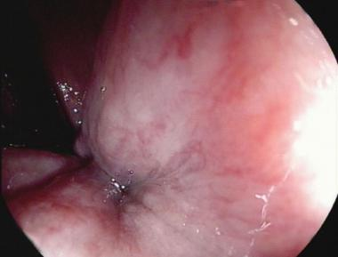 photo of internal hemorrhoid