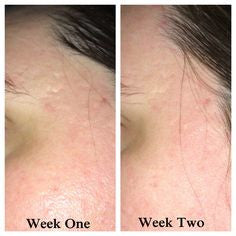 radha rosehip oil before and after