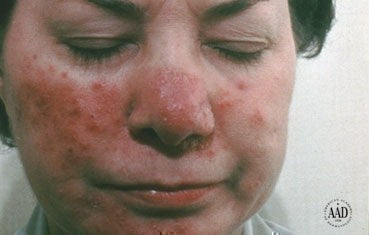 rosacea essential oils