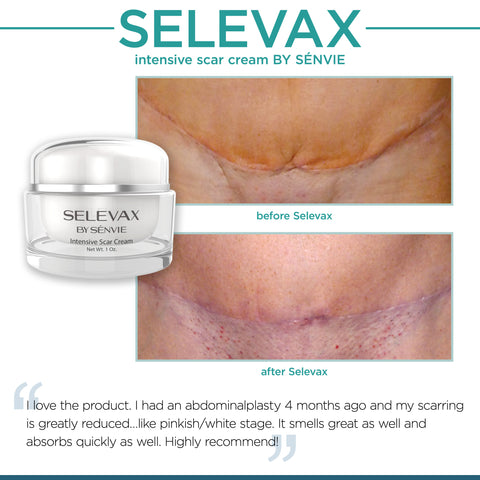 Shocking Biocorneum Scar Treatment Review The Review You Need