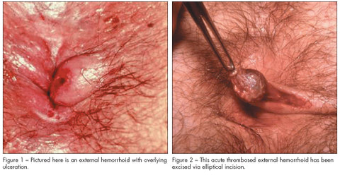 thrombosed hemorrhoids photo