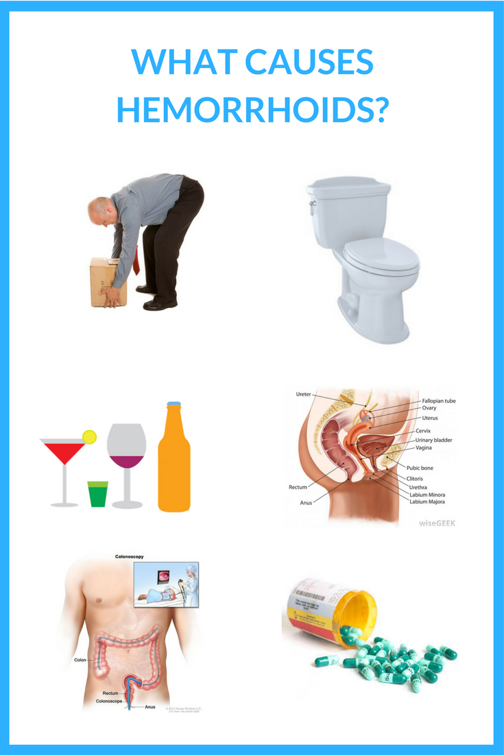what causes hemorrhoids