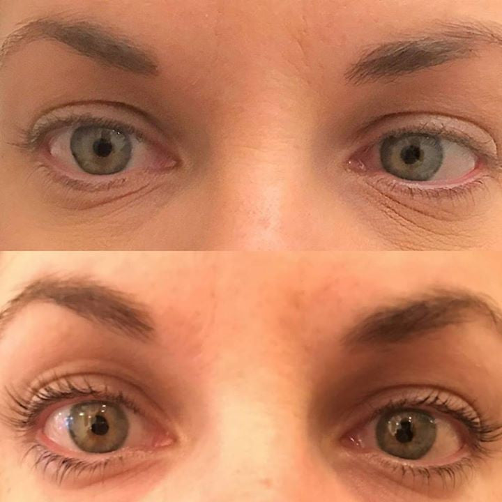 What's the deal with Lash Lifting?