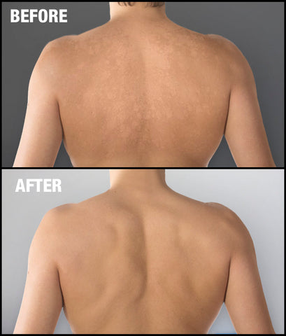 Tinea Versicolor before and after treatment