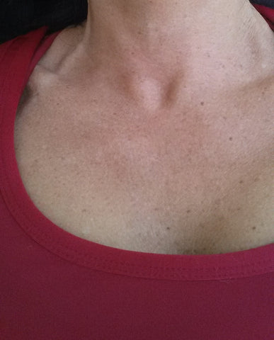 chest after anti-wrinkle treatment