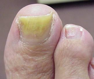 What Causes A Fungal Nail Infection