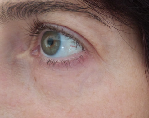 right eye after anti-wrinkle treatment