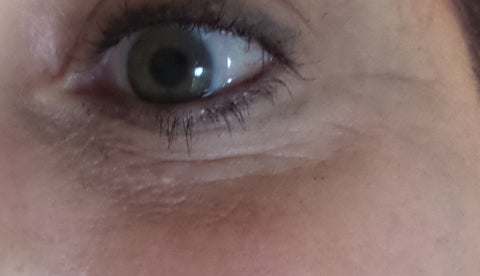right eye before anti-wrinkle treatment