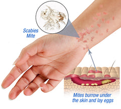 Naturasil scabies treatment infographic