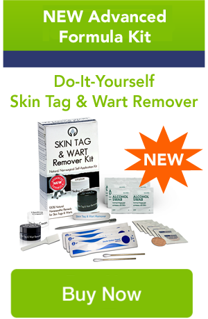 Skin Tag and Wart remover