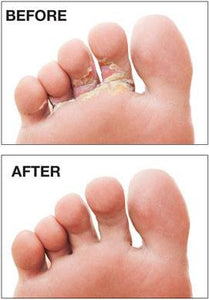 Athlete's Foot Treatment - 15 ml - Naturasil