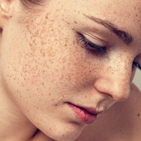 skin spots due to diabetes