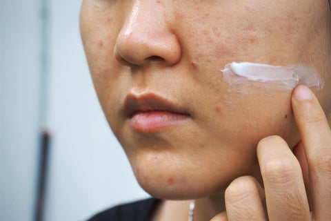 retinoid cream for dark spots